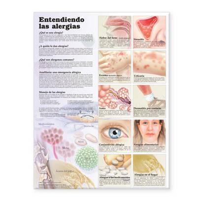 Understanding Allergies Anatomical Chart in Spanish (Entendiendo Las Alergias)