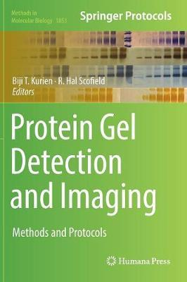 Protein Gel Detection and Imaging image