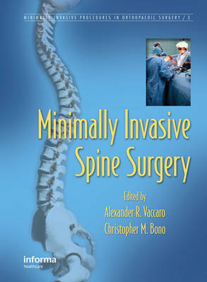 Minimally Invasive Spine Surgery