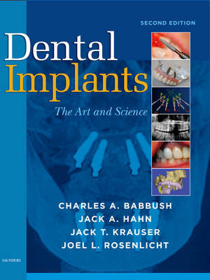 Dental Implants by Charles A. Babbush image