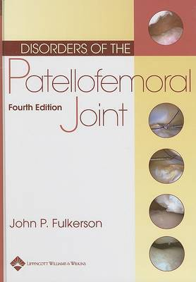 Disorders of the Patellofemoral Joint by John P. Fulkerson