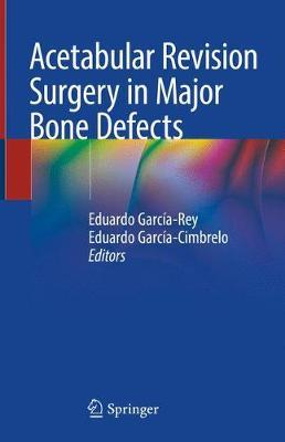 Acetabular Revision Surgery in Major Bone Defects image