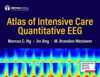 Atlas of Intensive Care Quantitative EEG by Jin Jing