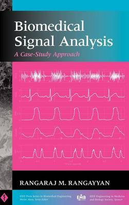 Biomedical Signal Analysis: A Case-study Approach by Rangaraj M. Rangayyan image