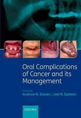 Oral Complications of Cancer and its Management image