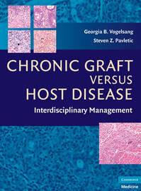 Chronic Graft Versus Host Disease image