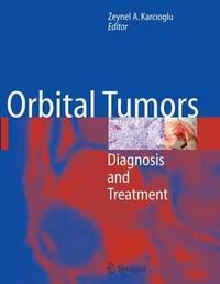 Orbital Tumors image