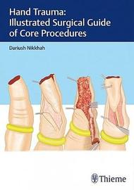 Hand Trauma: Illustrated Surgical Guide of Core Procedures by Dariush Nikkhah