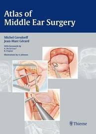 Atlas of Middle Ear Surgery by Michel Gersdorff image