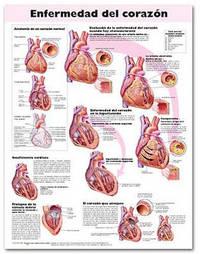 Heart Disease Anatomical Chart in Spanish (Enfermedad Cardiaca) image