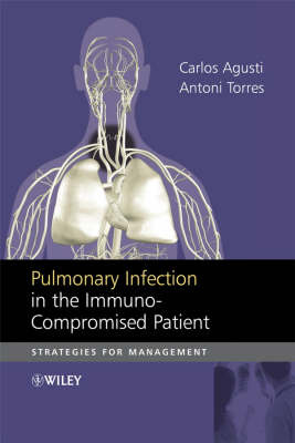 Pulmonary Infection in the Immuno-compromised Patient image