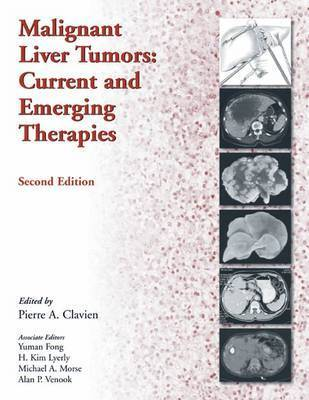 Malignant Liver Tumors by Pierre-Alain Clavien