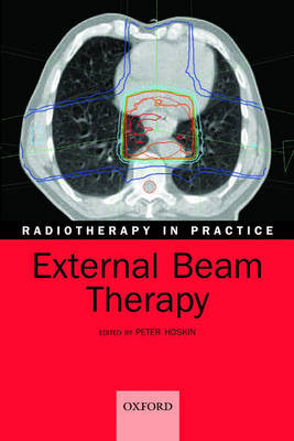 External Beam Therapy image
