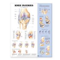 Knee Injuries Anatomical Chart image