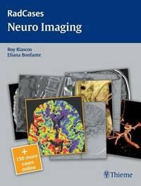 Radcases Neuro Imaging image