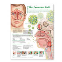 Understanding the Common Cold Anatomical Chart image