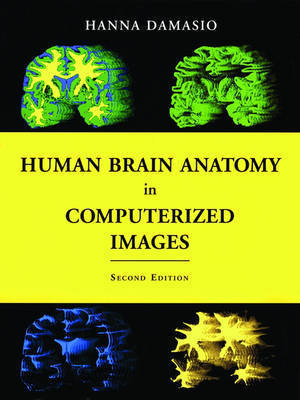 Human Brain Anatomy in Computerized Images by Hanna Damasio