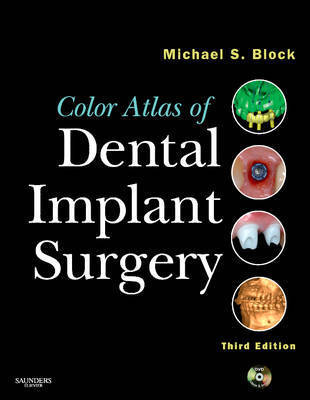 Color Atlas of Dental Implant Surgery by Michael S Block