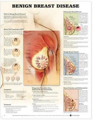 Benign Breast Disease Anatomical Chart image