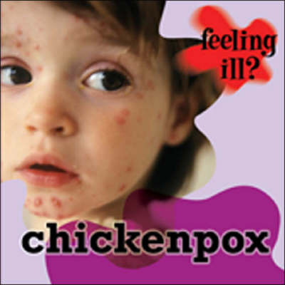 Chicken Pox by Jillian Powell image