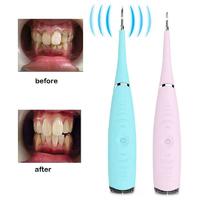 Electric Ultrasonic Dental Scaler - Pink
