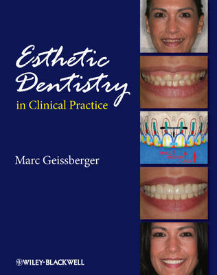 Esthetic Dentistry in Clinical Practice by Marc Geissberger