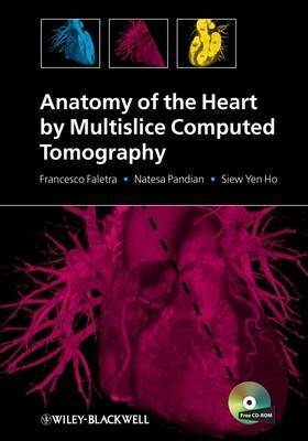 Anatomy of the Heart by Multislice Computed Tomography by Francesco Fulvio Faletra