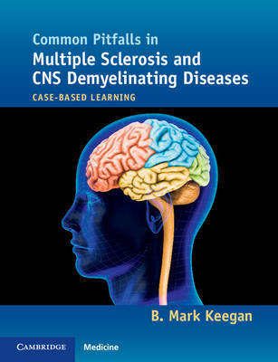 Common Pitfalls in Multiple Sclerosis and CNS Demyelinating Diseases by B. Mark Keegan image