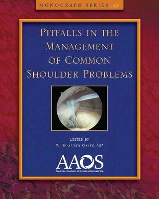 Pitfalls in the Management of Common Shoulder Problems image