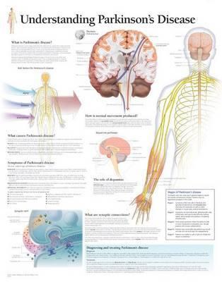 Understanding Parkinsons image