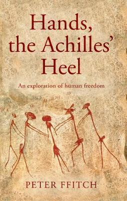 Hands, the Achilles' Heel by Peter Ffitch