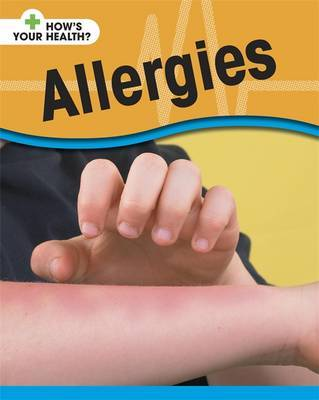 Allergies by Angela Royston image