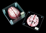 Brain Specimen - Coasters