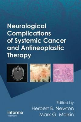 Neurological Complications of Systemic Cancer and Antineoplastic Therapy image