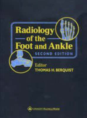 Radiology of the Foot and Ankle by Thomas H. Berquist