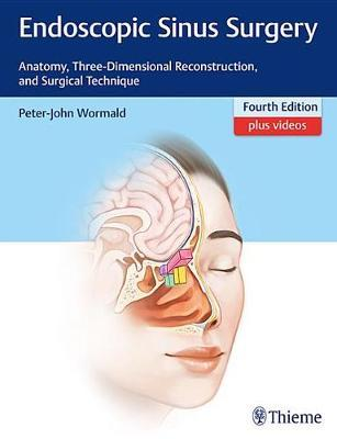 Endoscopic Sinus Surgery by Peter J. Wormald