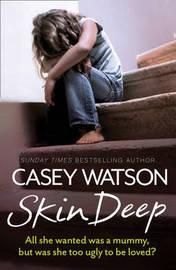 Skin Deep by Casey Watson