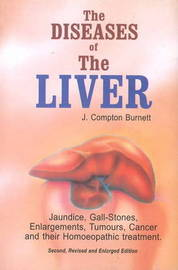 The Diseases of the Liver: Jaundice, Gall-Stones, Enlargements, Tumours, Cancer & Their Homoeopathic Treatment by J.Compton Burnett image