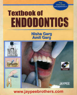 Textbook of Endodontics by Nisha Garg
