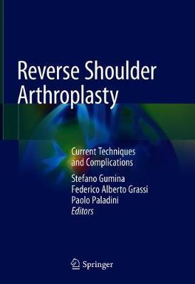 Reverse Shoulder Arthroplasty image