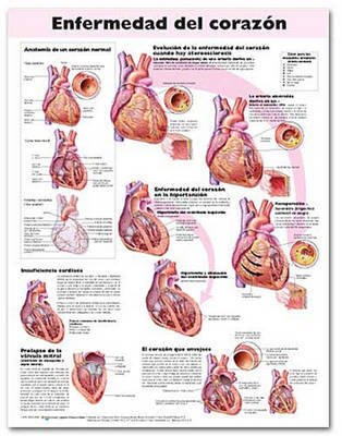 Heart Disease Anatomical Chart in Spanish (Enfermedad Cardiaca)