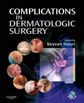 Complications in Dermatologic Surgery by Keyvan Nouri image