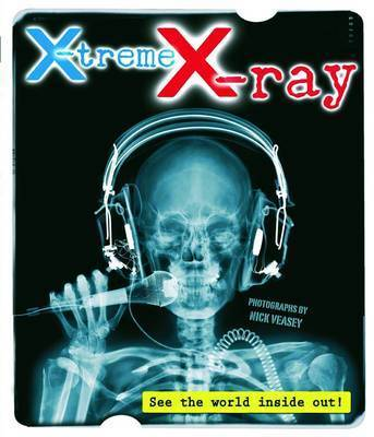 X-Treme X-Ray image