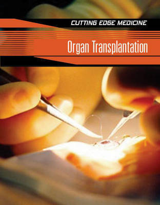 Organ Transplantation by Carol Ballard