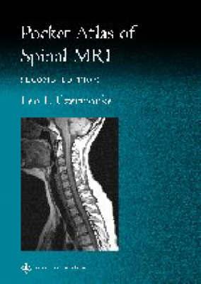 Pocket Atlas of Spinal MRI by Leo F. Czervionke image