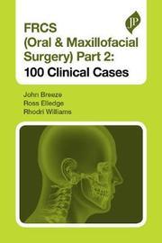 FRCS (Oral & Maxillofacial Surgery) Part 2: 100 Clinical Cases by John Breeze