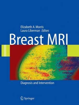 Breast MRI image