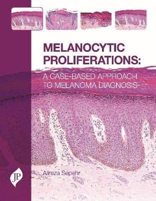 Melanocytic Proliferations by Alireza Sepehr