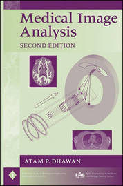 Medical Image Analysis by Atam P Dhawan