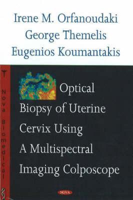Optical Biopsy of Uterine Cervix Using a Multispectral Imaging Colposcope by Irene M. Orfanoudaki